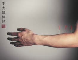 balance method acupuncture